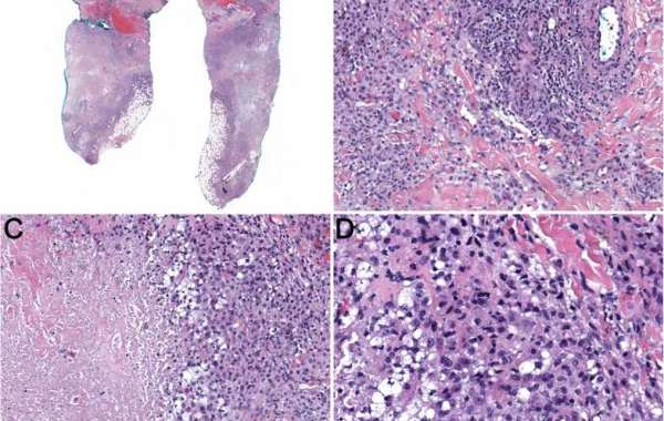 Multifocal pleomorphic dermal sarcoma + the role of inflammation and immunosuppression in a lung transplant: case report