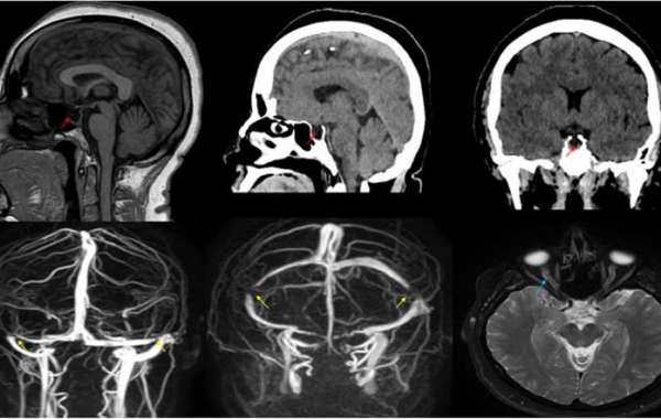 Idiopathic intracranial hypertension presenting with isolated unilateral facial nerve palsy: a case report
