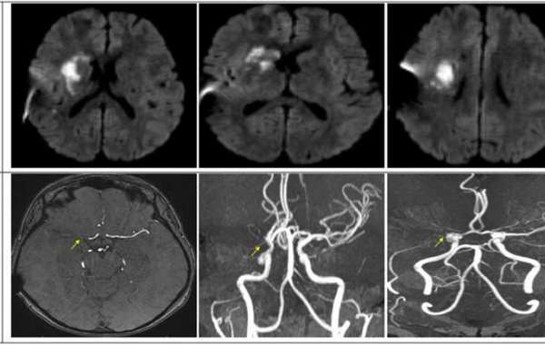 Occlusive radiation cerebral vasculopathy implies medical complexity: a case report