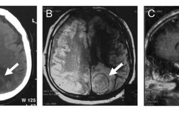 Adult brain abscess associated with patent foramen ovale: a case report