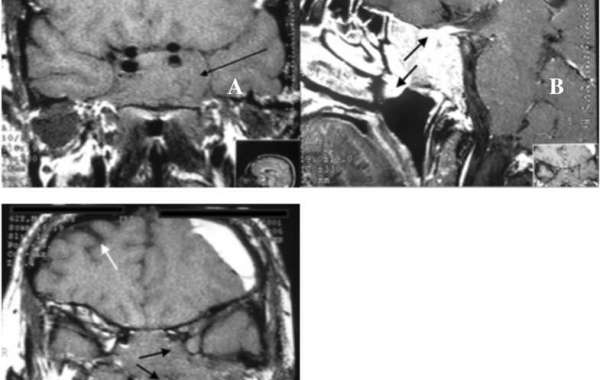 Giant cabergoline-resistant prolactinoma in a man who presented with a psychotic episode during treatment: a case report