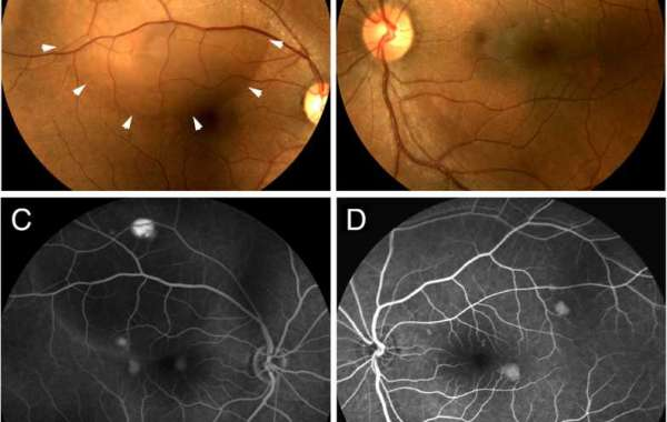 Central serous retinopathy associated with topical oral corticosteroid use: a case report